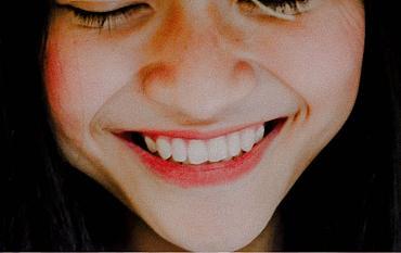 Is het bleken van je tanden schadelijk?