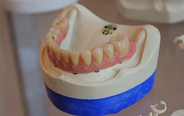 'Veel patiënten met gebitsprothese onnodig verzekerd voor tandartskosten'